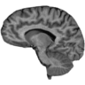 Sanjay's Brain